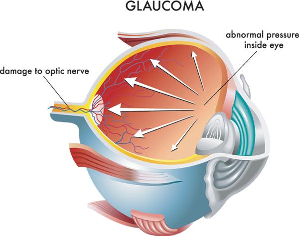 Cedar City Beaver Ut Glaucoma Eye Care Specialists Glaucoma